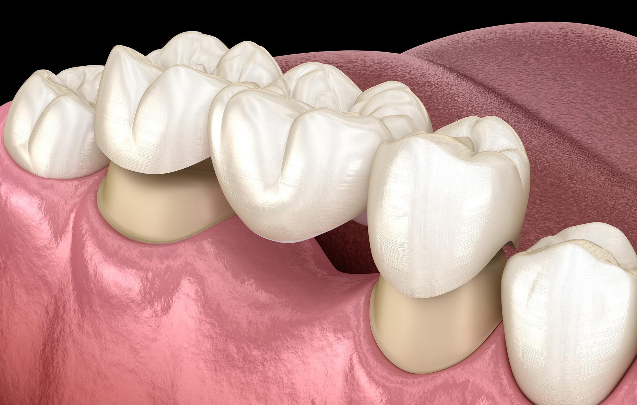 dental-bridges-castle-rock