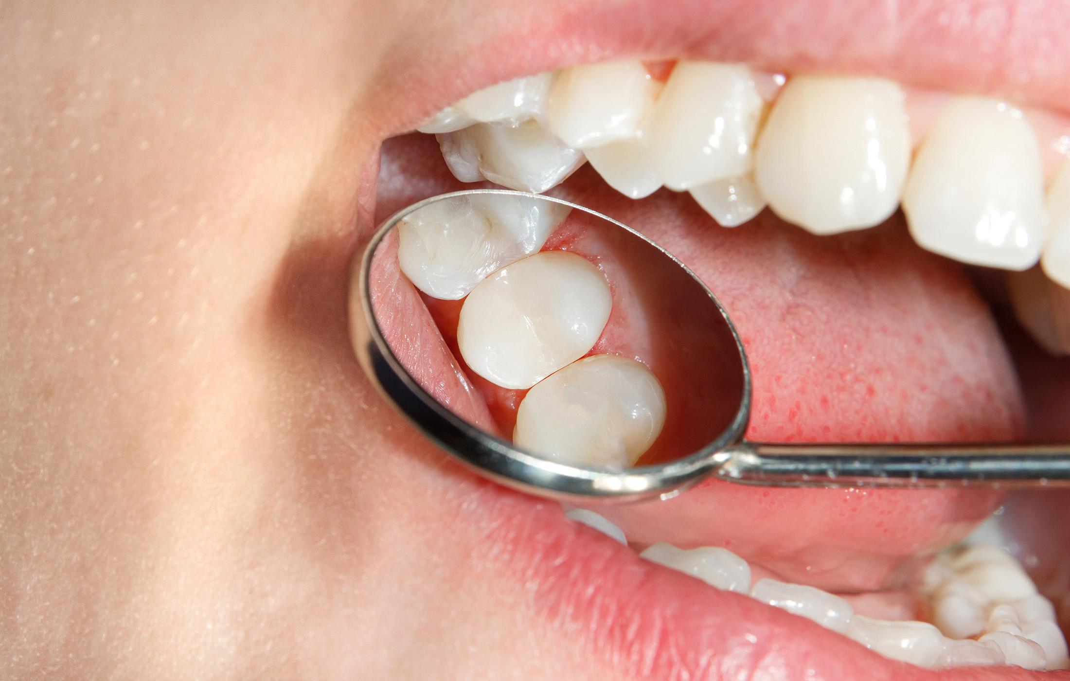 dental-fillings-castle-rock