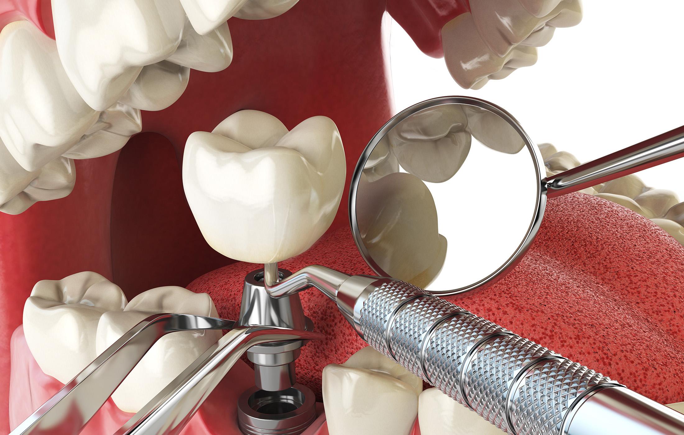dental-implants-castle-rock